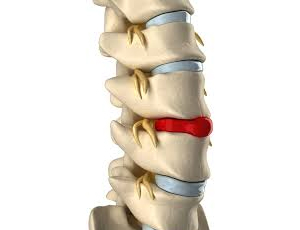 Bulging or Herniated Discs